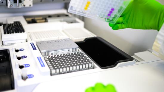Laborarbeit mit Patientenproben